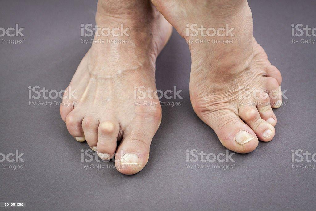 Feet Of Woman Deformed From Rheumatoid Arthritis stock photo