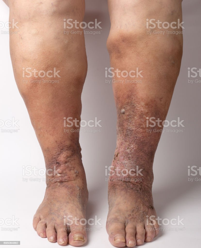 feet old woman patient with varices on a white background stock photo