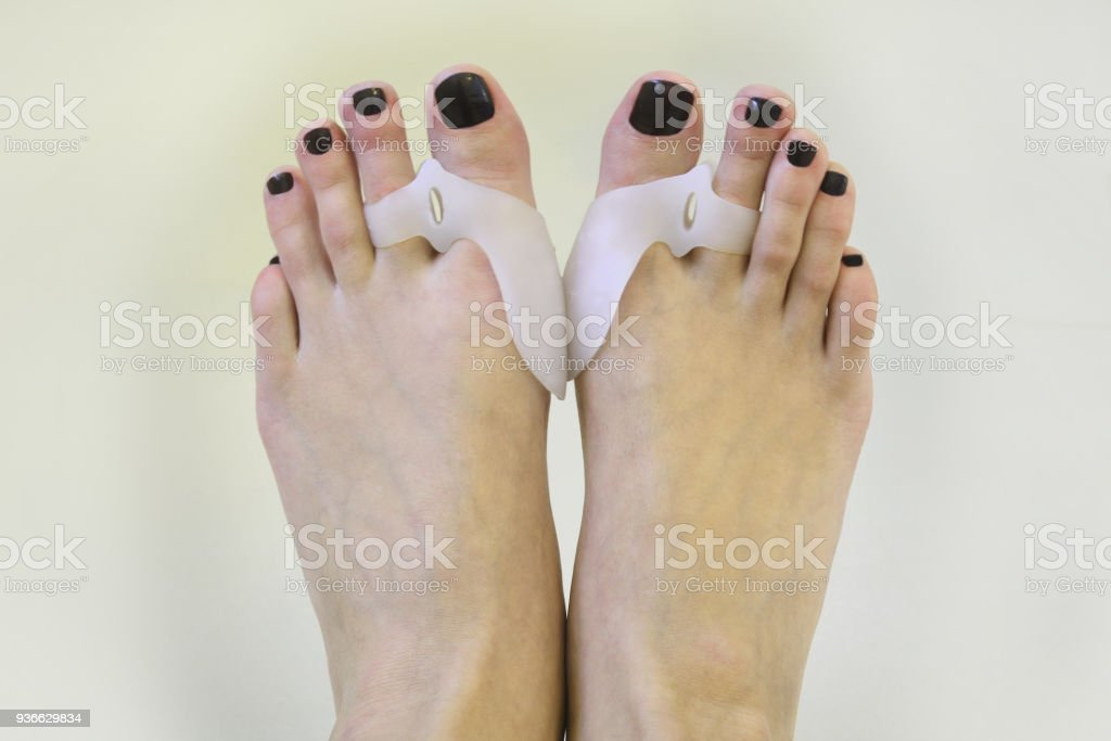 Feet Wearing Hallux Valgus Orthopedic Pads On Toes Stock Photo ...
