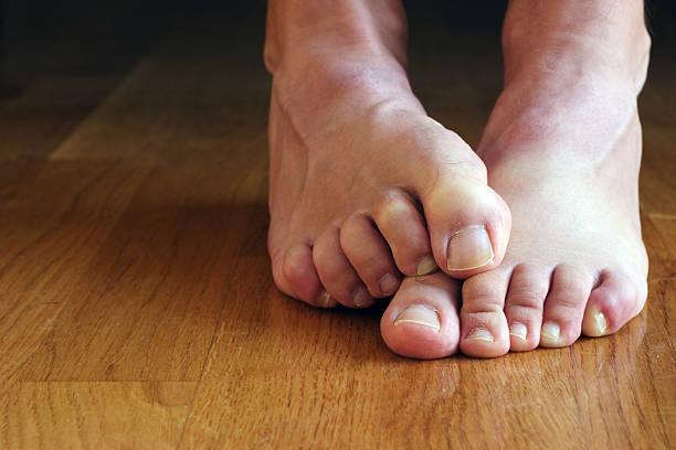 Füße mit cringing Zehen – Foto