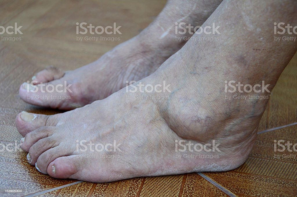Feet with synovitis stock photo