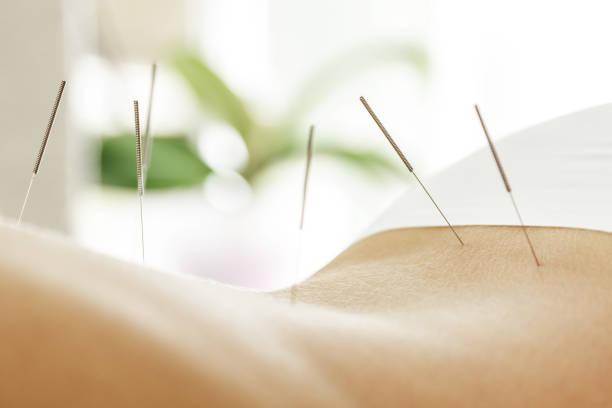 dos féminin avec des aiguilles en acier pendant la procédure de thérapie d'acupuncture - acupuncture photos et images de collection