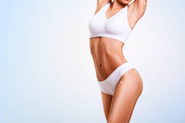 corpo femminile, chirurgia estetica e liposuzione cutanea. - il corpo umano foto e immagini stock