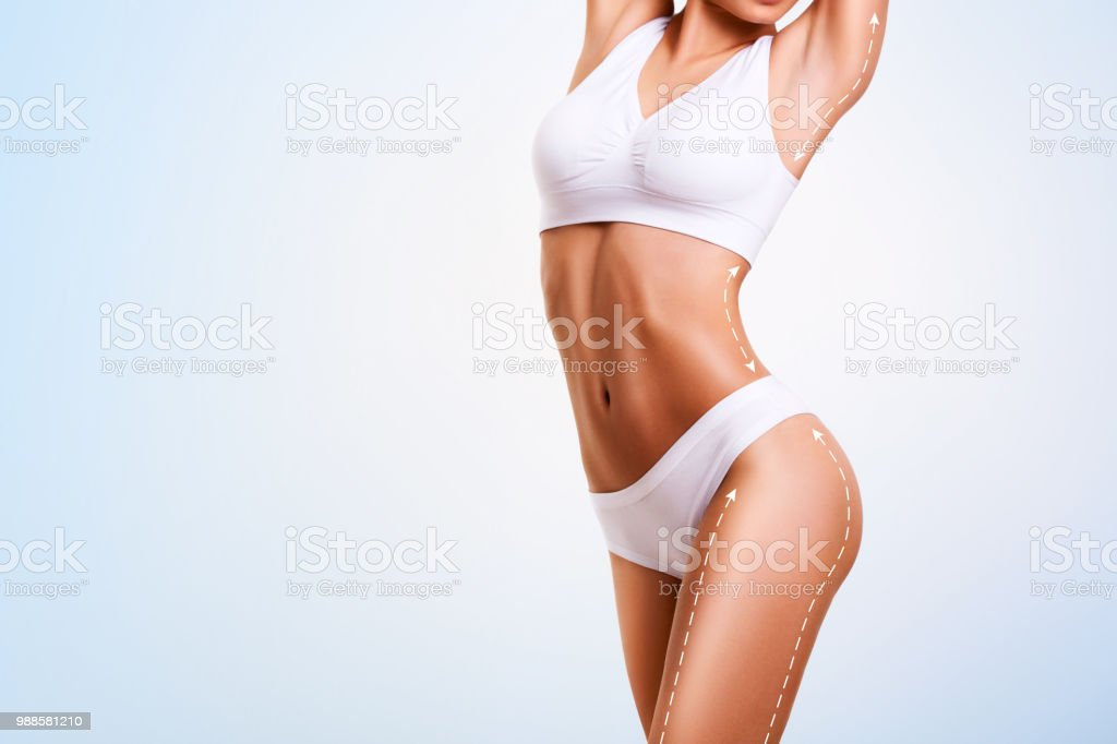 Female body, cosmetic surgery and skin liposuction. stock photo