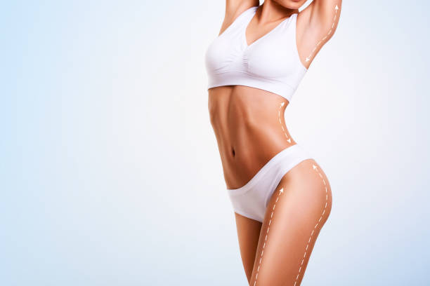 female body, cosmetic surgery and skin liposuction. - corpo foto e immagini stock