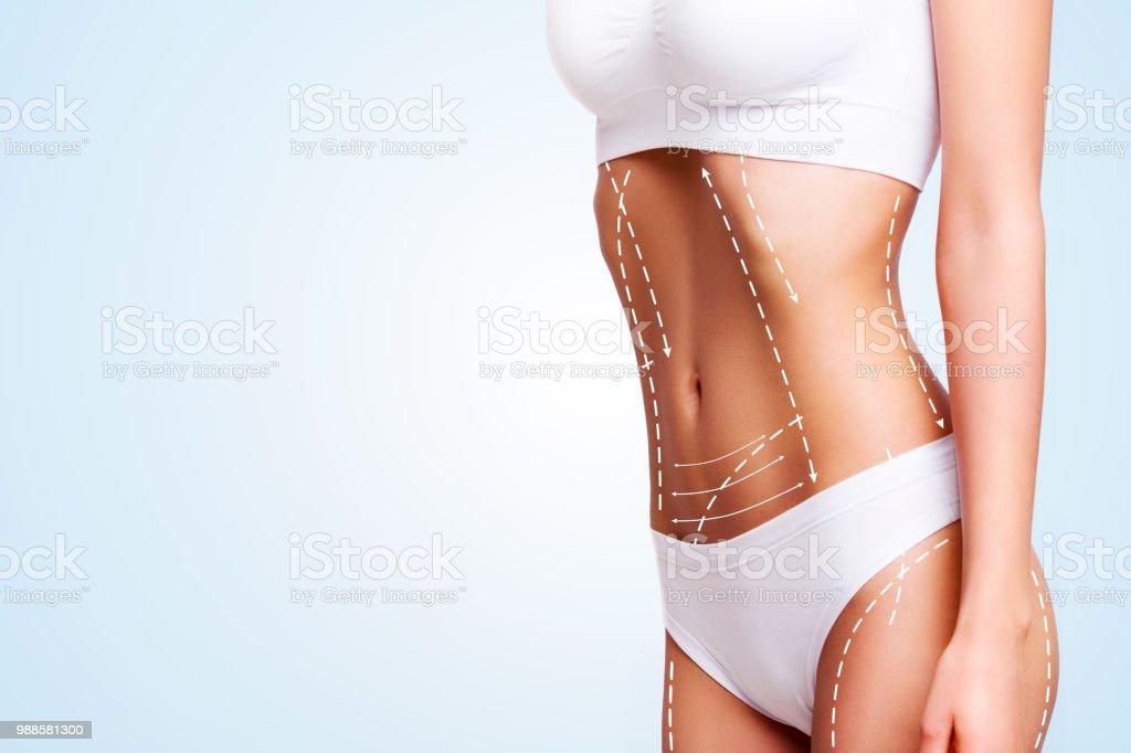 b2b977e97c Female Body Cosmetic Surgery And Skin Liposuction Stock Photo   More ...