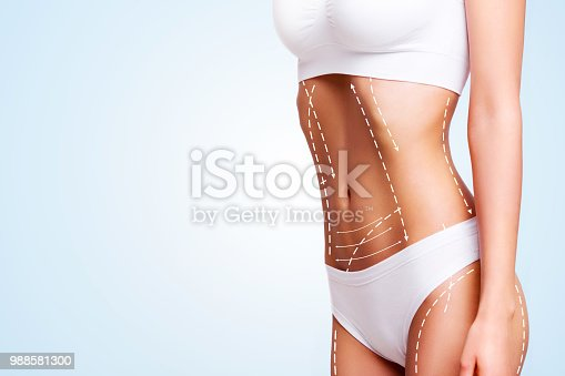 988581210 istock photo Female body, cosmetic surgery and skin liposuction. 988581300