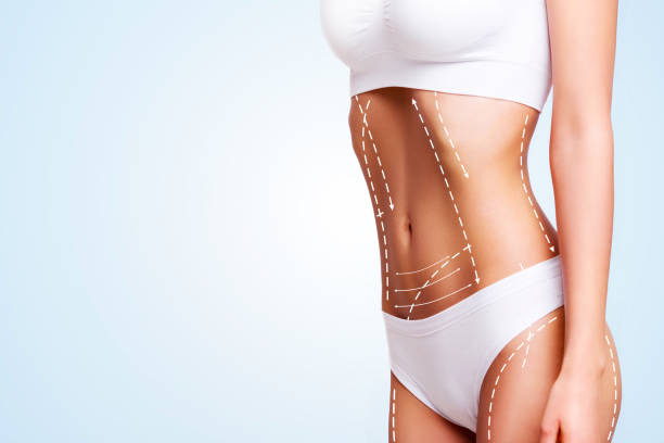 Female body, cosmetic surgery and skin liposuction. Beauty and body care. liposuction stock pictures, royalty-free photos & images