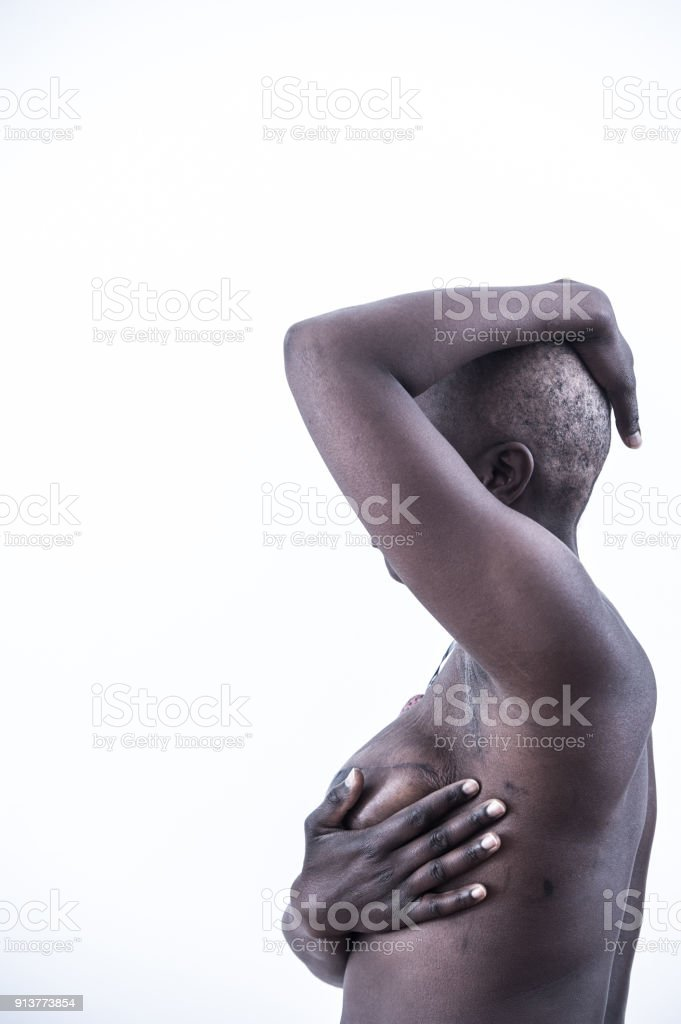 Female Cancer Survivor with Shaved Head stock photo