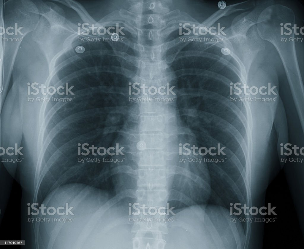 Female Chest X-Ray stock photo