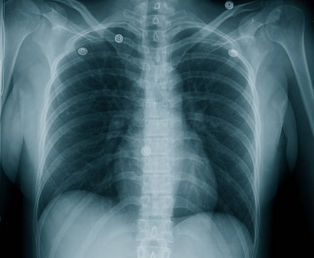 Female Chest X-Ray stock photo