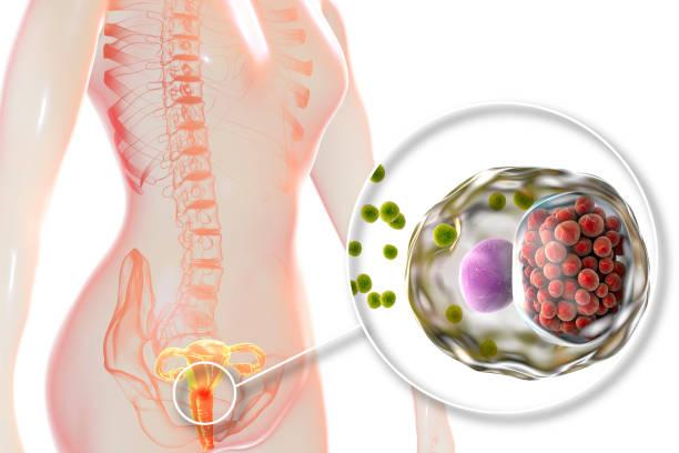 Female chlamydiosis, medical concept stock photo