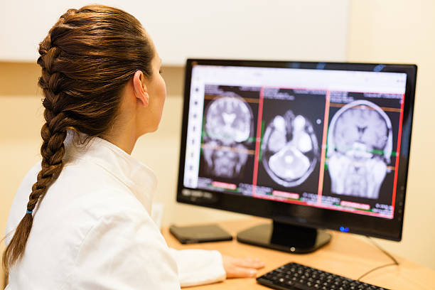 Female doctor analyzing MRI scan of the brain stock photo