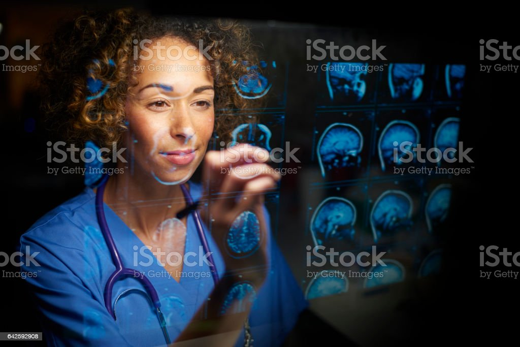 female doctor checking mri scans stock photo