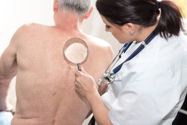 ärztin, die überprüfung haut des älteren patienten - hautkrebs stock-fotos und bilder