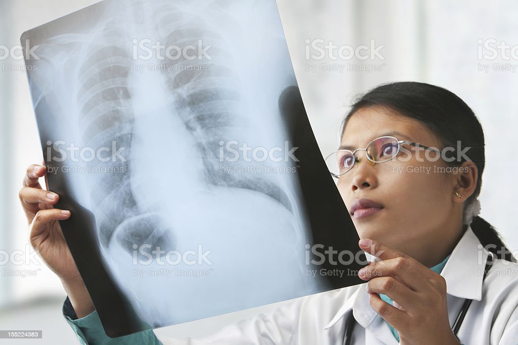 Female doctor checking xray image stock photo