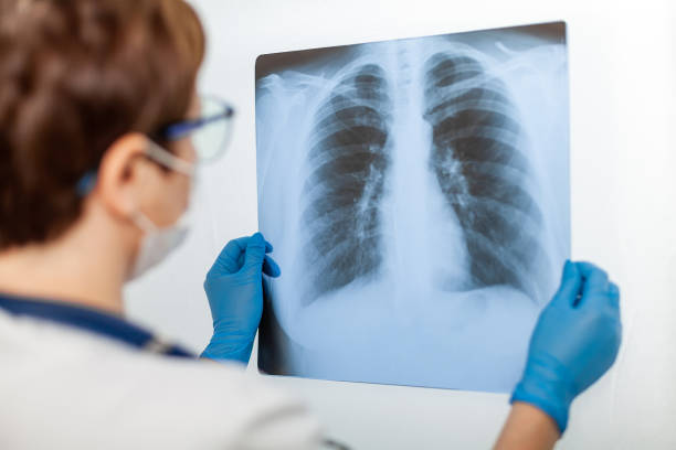A female doctor examines an X-ray of a patient s lung infected with covid-19 coronavirus, pneumonia.X-rays of light. Fluorography. Checking the lungs in the hospital. Real x-ray of human lungs stock photo
