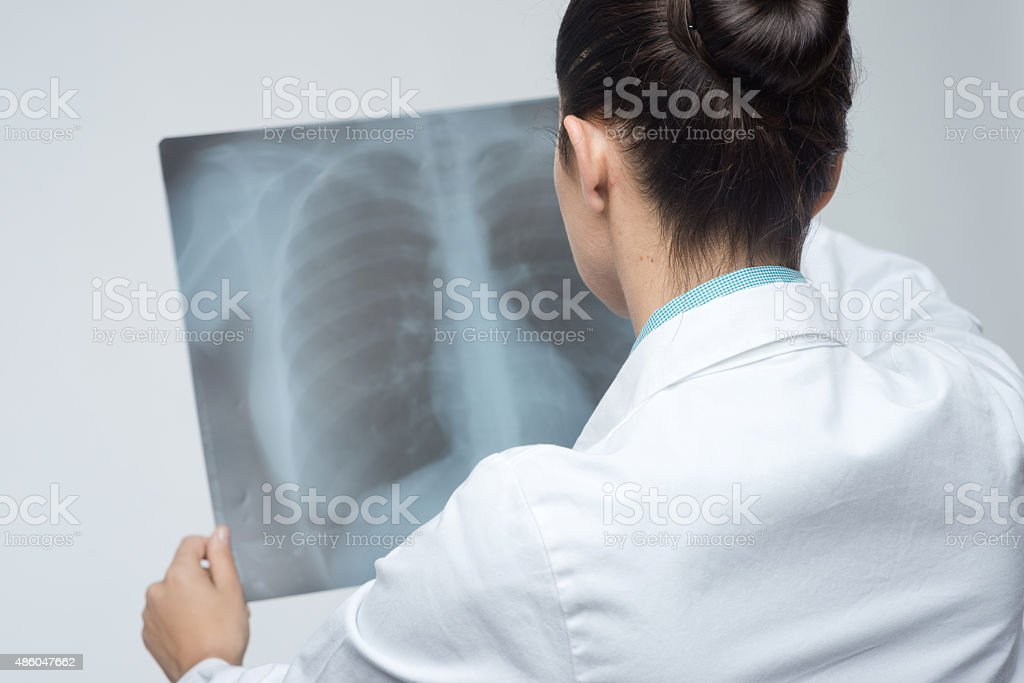 Female doctor examining x-ray image stock photo
