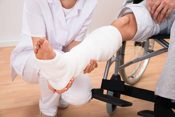 female doctor holding patient's leg - broken leg stock photos and pictures