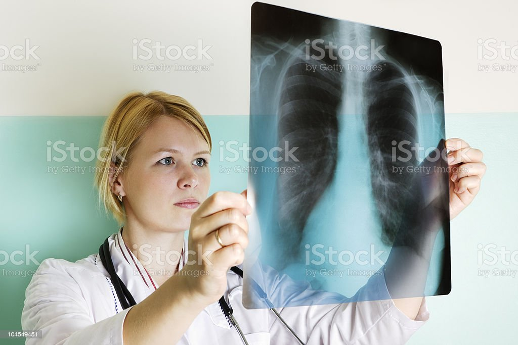 Female doctor looking at X-Ray Young doctor examining a lung xray Adult Stock Photo