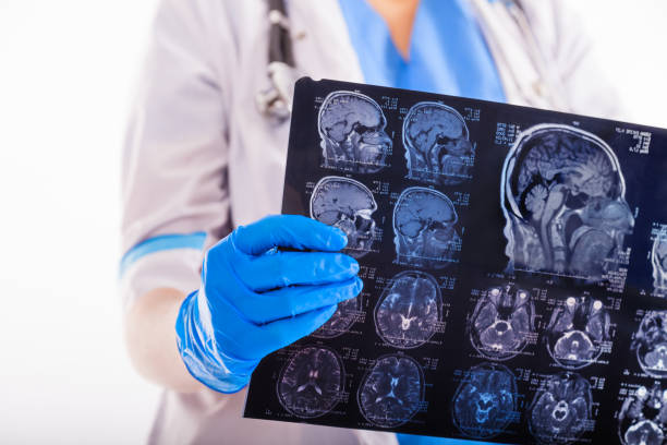 Female doctor looking MRI picture. stock photo