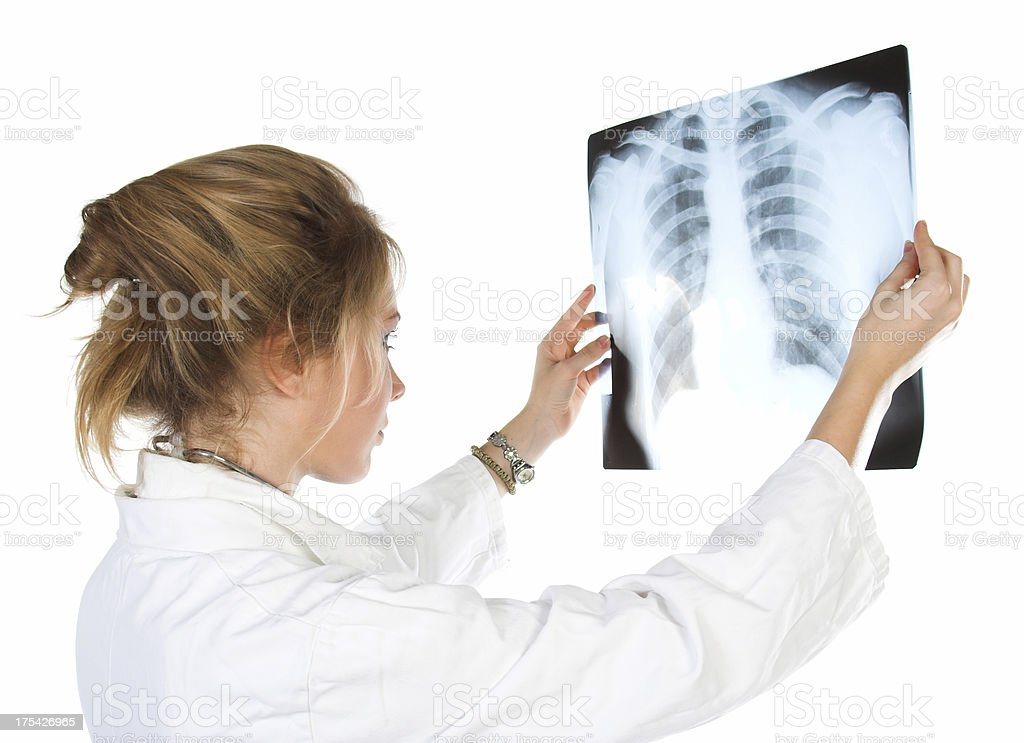 Female doctor - X-Rays Lungs royalty-free stock photo