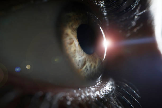 female eye on surgery clinic exam closeup - detachment stock pictures, royalty-free photos & images