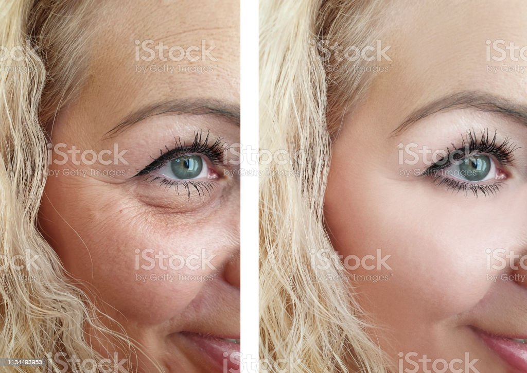 female eye wrinkles before and after correction procedures