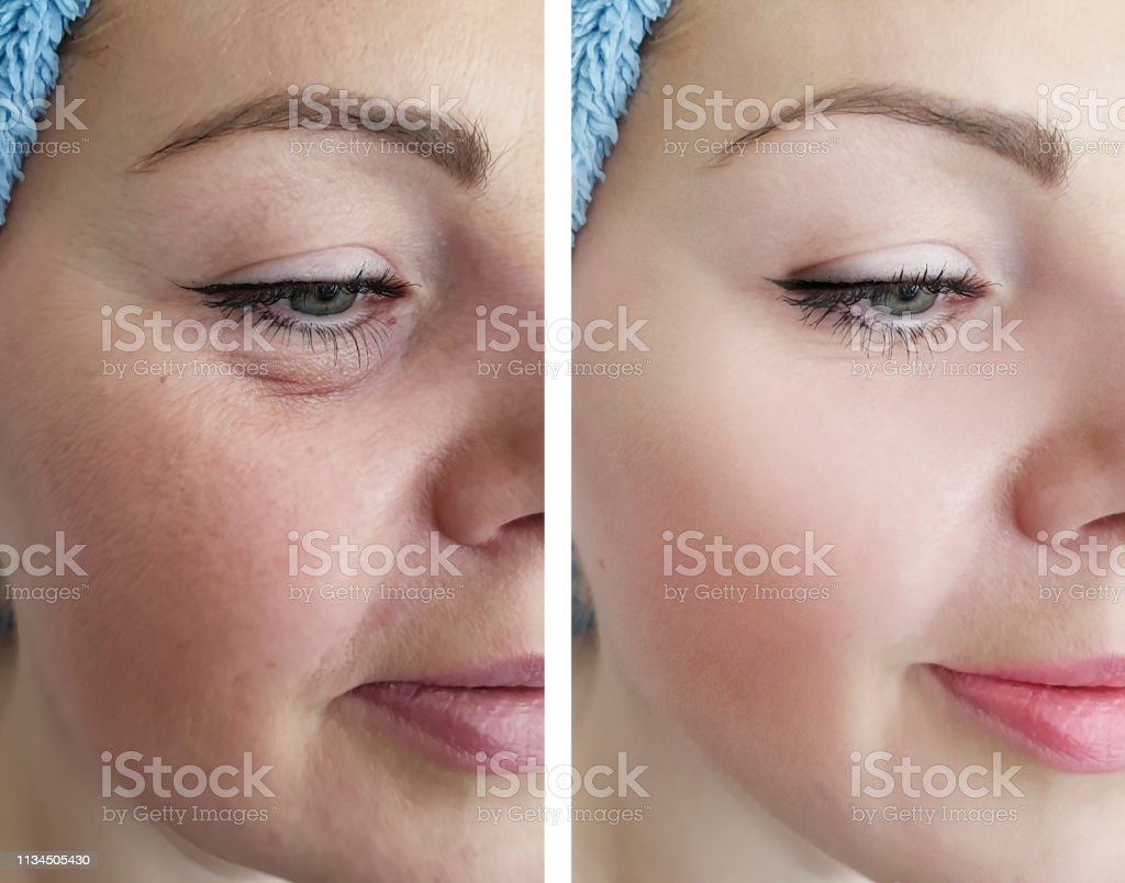 female eye wrinkles before and after correction procedures female eye wrinkles before and after correction procedures Adult Stock Photo