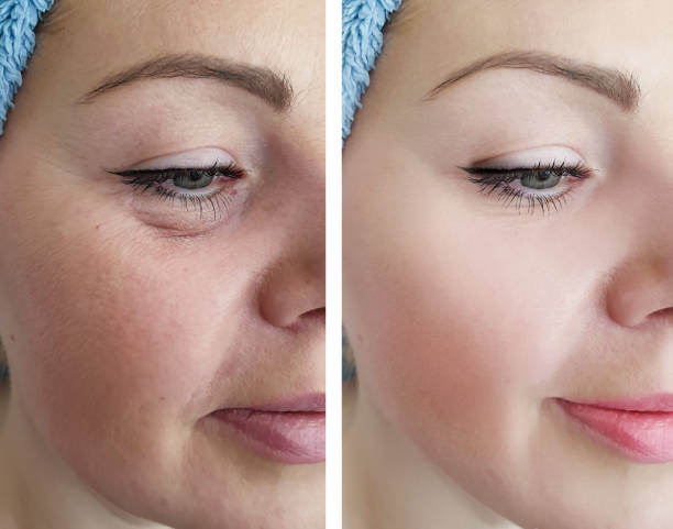 female eye wrinkles before and after correction procedures female eye wrinkles before and after correction procedures antiaging stock pictures, royalty-free photos & images