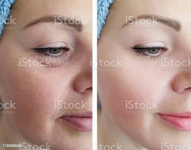 Female Eye Wrinkles Before And After Correction Procedures Stock Photo - Download Image Now