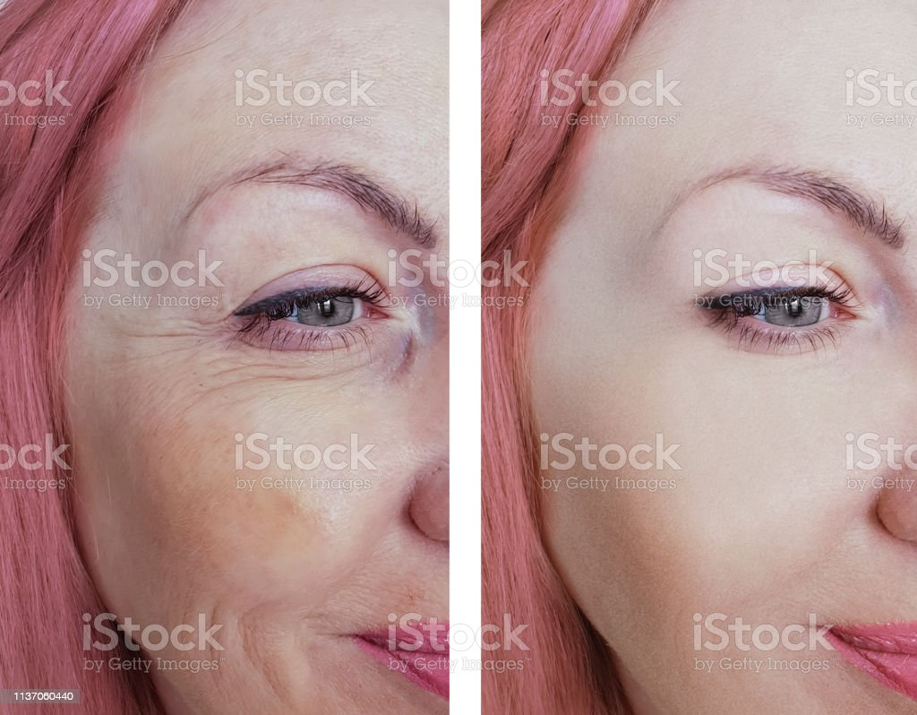 female eye wrinkles before and after procedures