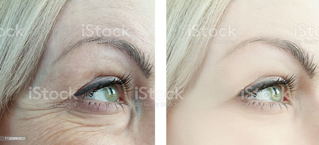female eye wrinkles before and after retouching procedures