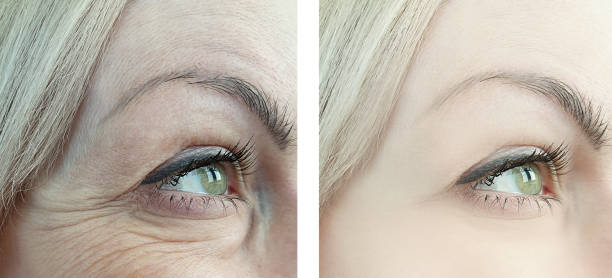 female eye wrinkles before and after retouching procedures - eyelid stock pictures, royalty-free photos & images