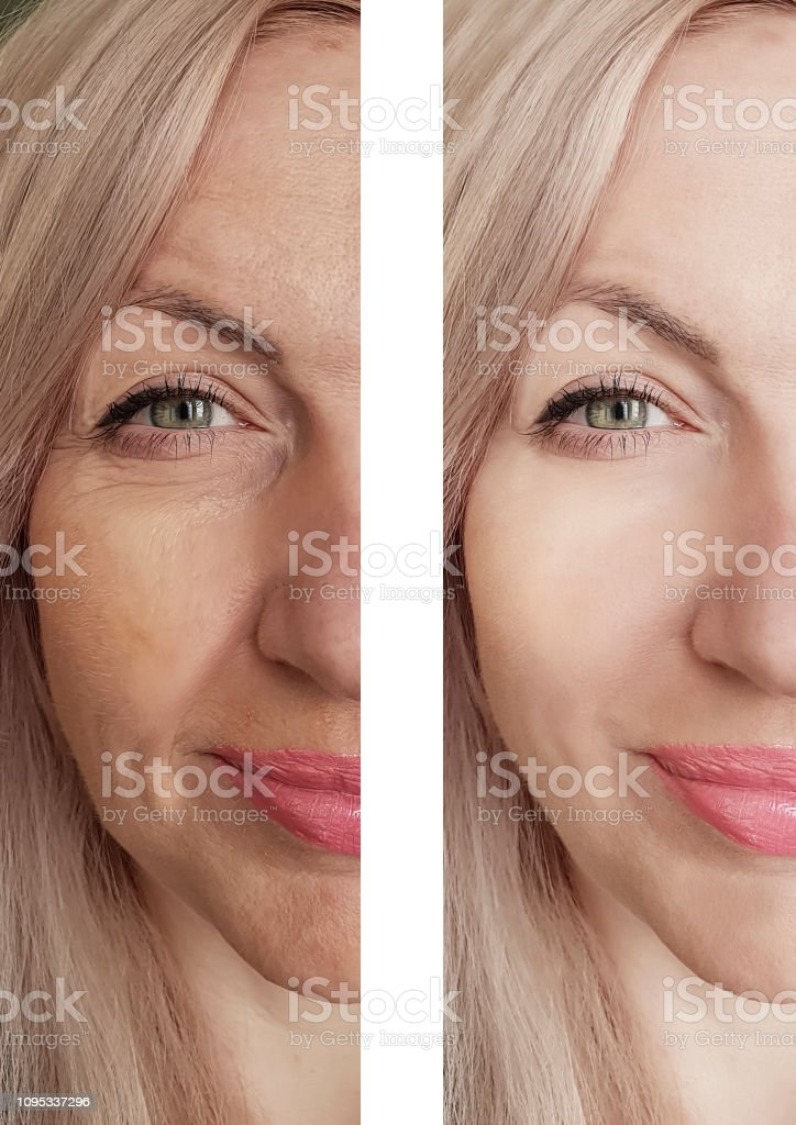 female eye wrinkles before and after treatments stock photo