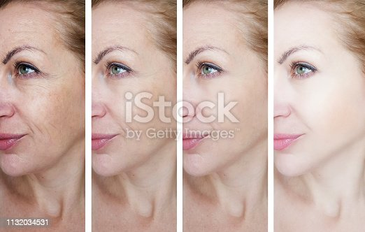 istock female eye wrinkles before and after treatments 1132034531