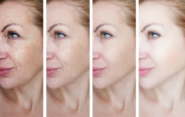 female eye wrinkles before and after treatments female eye wrinkles before and after treatments antiaging stock pictures, royalty-free photos & images