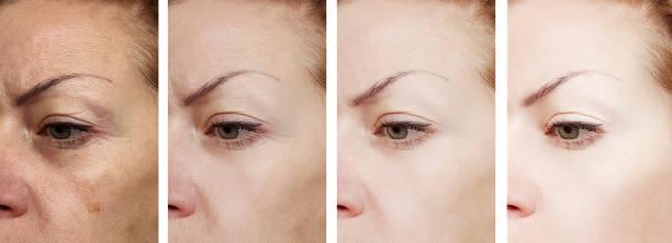 kvinnliga ögon rynkor före och efter behandlingar - filler swollen bildbanksfoton och bilder
