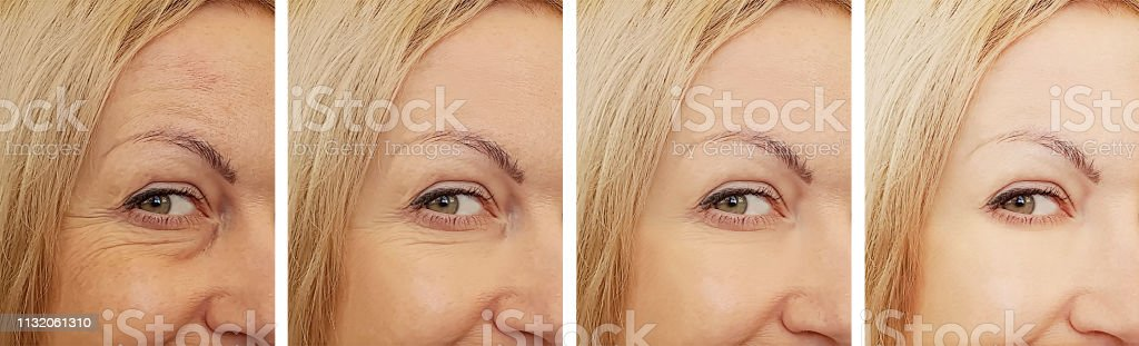female eye wrinkles before and after treatments