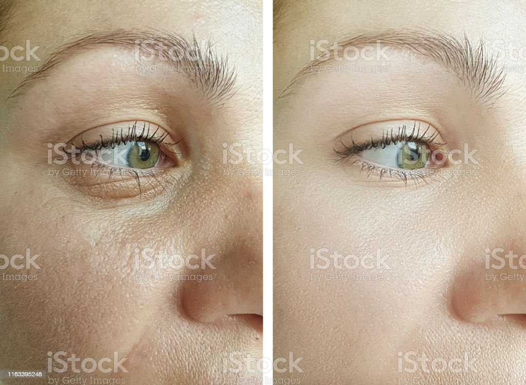 female eyes wrinkles before and after correction