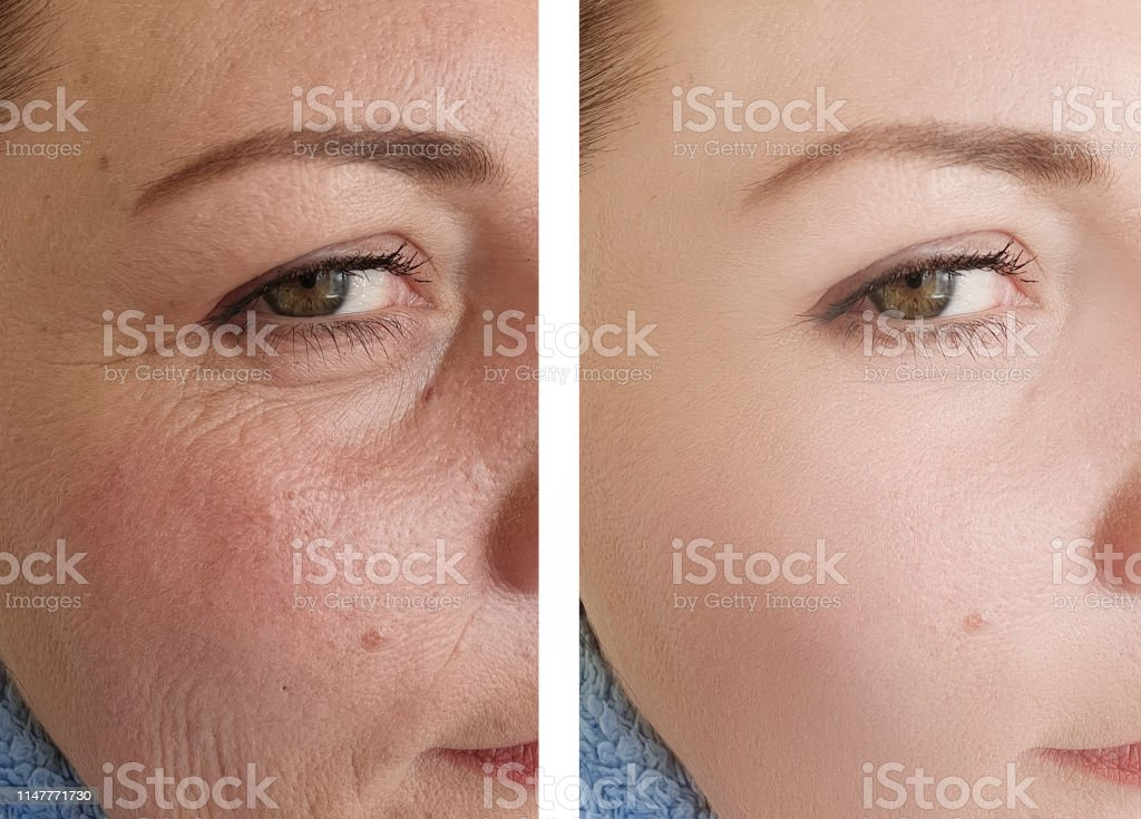 female eyes wrinkles before and after correction procedures