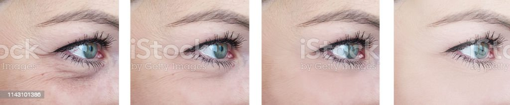 female eyes wrinkles before and after procedures