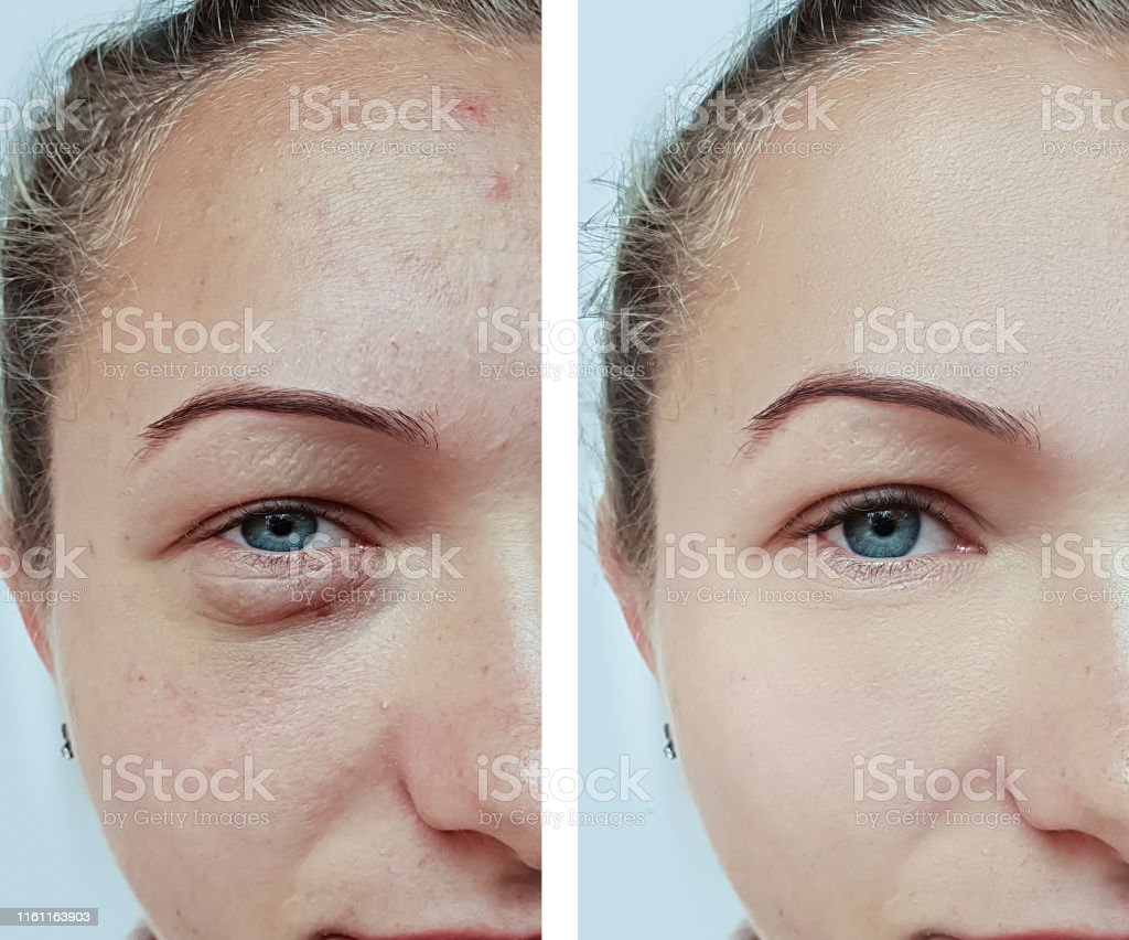 female eyes wrinkles before and after treatment