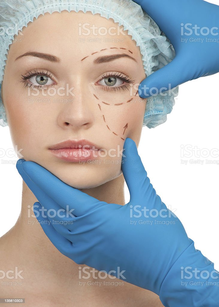 Female face before plastic surgery operation royalty-free stock photo