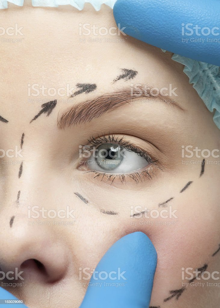 Female face with drawn on markers before plastic surgery stock photo