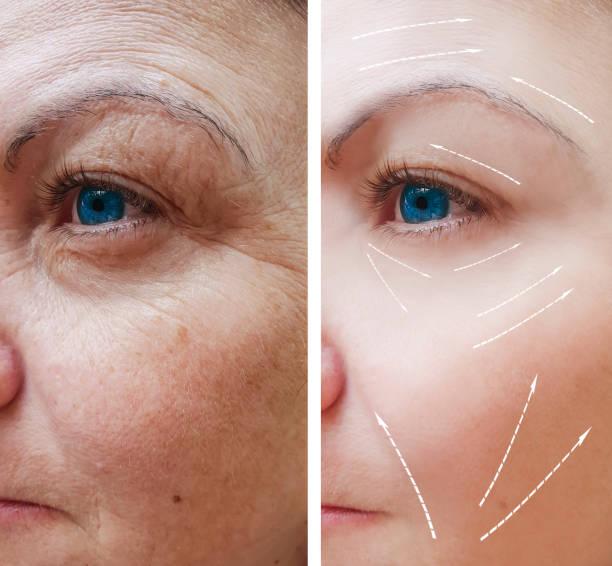 kvinnliga ansiktsrynkor före och efter förfaranden - filler swollen bildbanksfoton och bilder