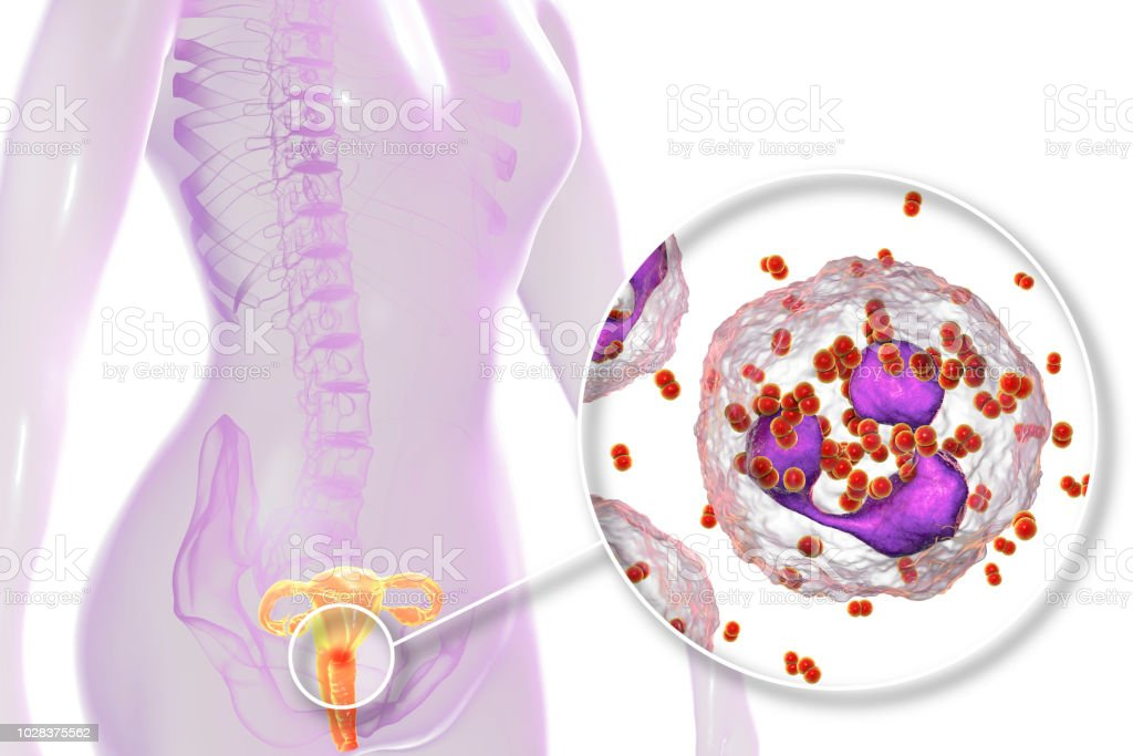 Female Gonorrhea Medical Concept Stock Photo More Pictures Of