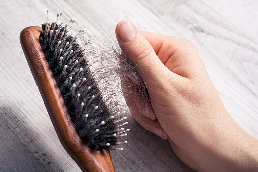 istock Female Hand Pulling Bunch Of Hair Out Of Brush - Alopecia Hair Loss Concept 1017174748