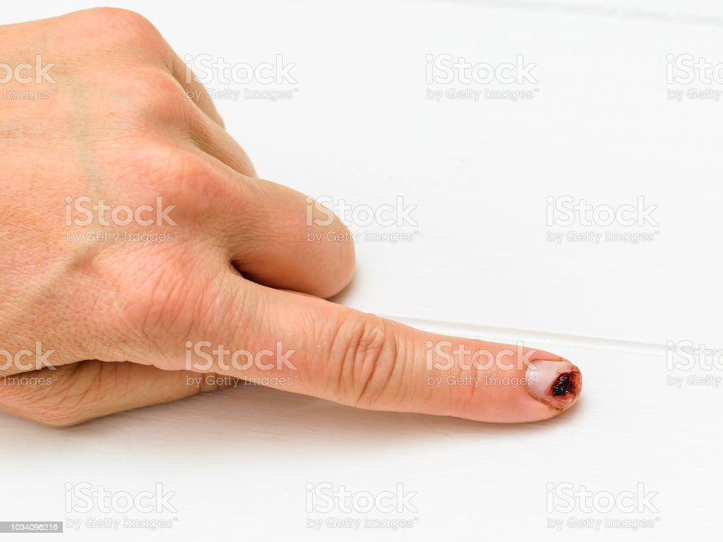 Female hand with cut finger on a white wooden table. stock photo