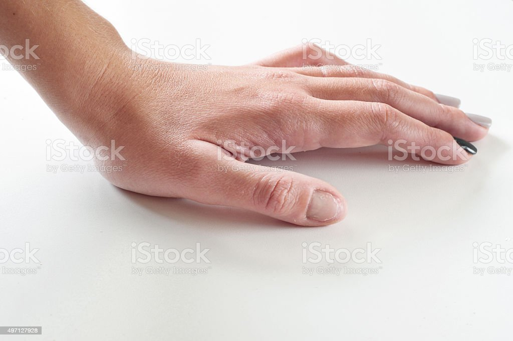 female hand with gnawed fingernail stock photo